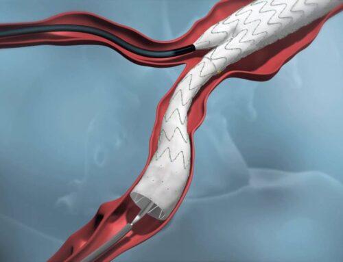 การพยาบาลผู้ป่วยเส้นเลือดแดงใหญ่ในช่องท้องโป่งพอง ที่ได้รับการรักษาด้วยการ ผ่าตัดสอดใส่หลอดเลือดเทียมชนิดขดลวดหุ้มกราฟต์ผ่านหลอดเลือดแดง (พัชรี ประทีปไพศาลกุล)